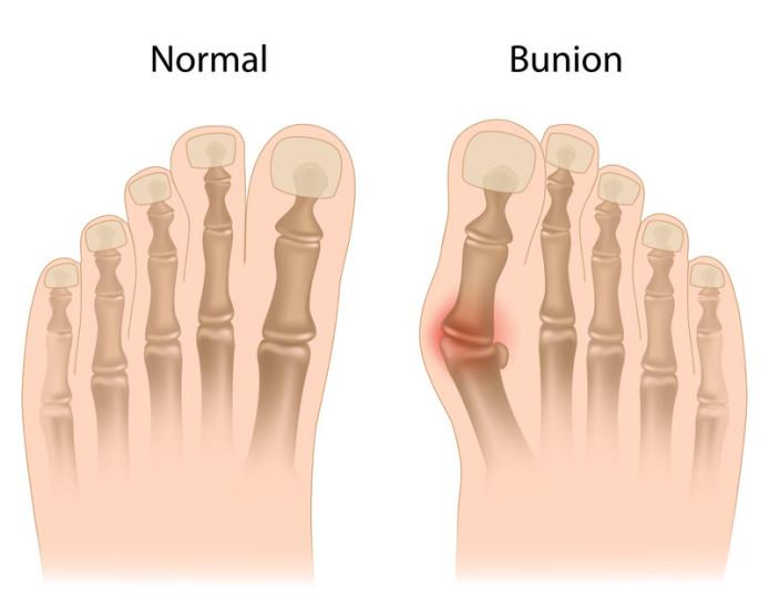 Bunion on big toe